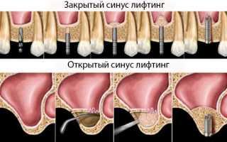Атрофия костной ткани челюсти после удаления зуба и при различных болезнях: можно ли восстановить?