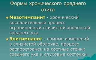 Восстановление функций вестибулярного аппарата: основные положения — Медицинский портал «health-ua.org»
